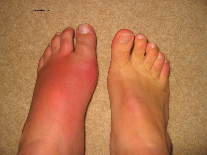 Bệnh Gout là gì? Cách phòng tránh bệnh Gout
