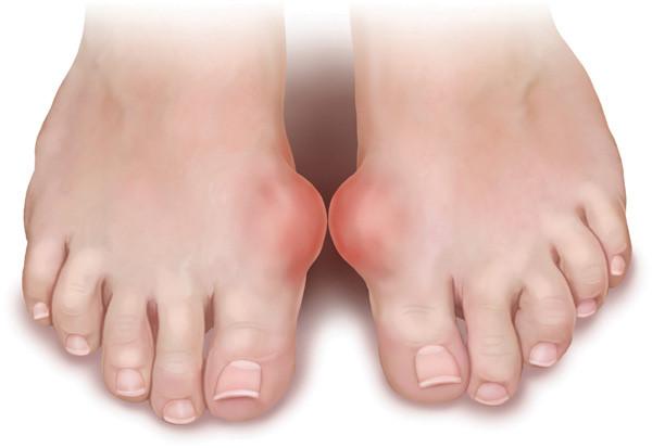 Nguyên nhân và biến chứng của bệnh Gout