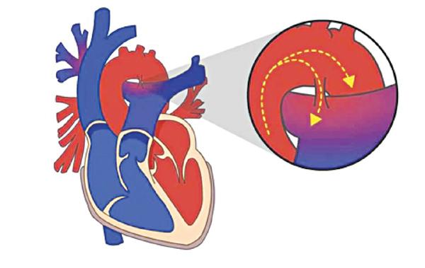 Cách phòng bệnh tim bẩm sinh
