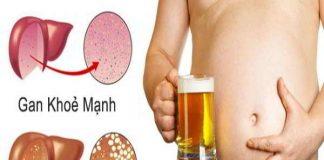 Tìm hiểu về bệnh gan nhiễm mỡ, nguyên nhân và cách điều trị
