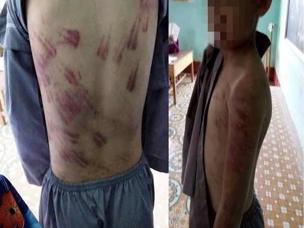 Bé trai 10 tuổi bị sư thầy bạo hành bầm tím cả người
