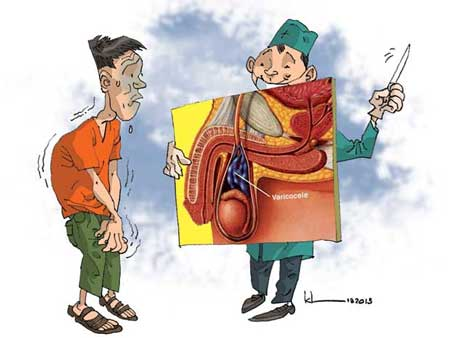Tác hại của giãn tĩnh mạch thừng tinh