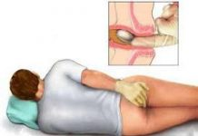 Cách nhận biết, điều trị và phòng tránh bệnh trĩ