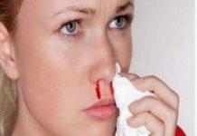 13 nguyên nhân chảy máu cam khiến bạn bất ngờ