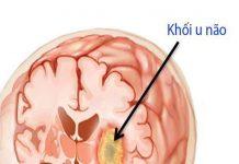 U não - Phân loại, phương pháp điều trị và phòng tránh bệnh