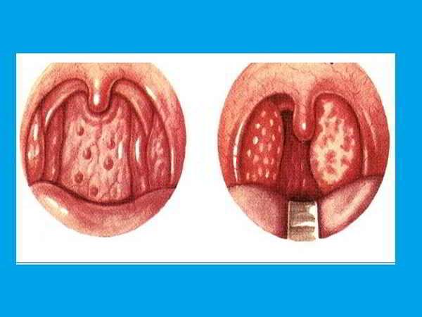 Viêm họng hạt - Nguyên nhân, triệu chứng và cách chữa trị tại nhà