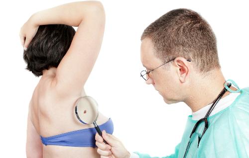 Phương pháp điều trị bệnh ung thư da