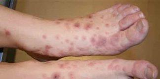 Tìm hiểu nguyên nhân, biểu hiện va phương pháp điều trị ung thư da