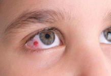 Tất tần tật những điều cần biết về bệnh viêm giác mạc