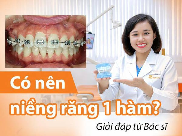 Niềng răng khi cần thiết