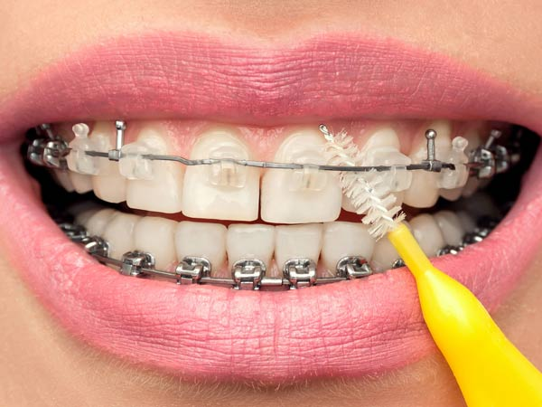 Vệ sinh răng miệng sạch sẽ là điều quan trọng nhất khi niềng răng